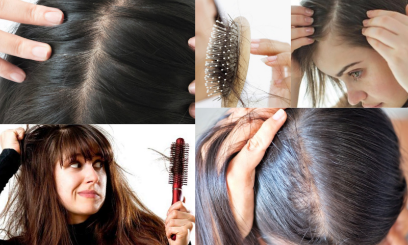 Bayanlarda Saç Dökülmesi
